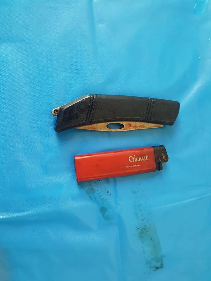 Из-за стресса мужчина проглотил нож и зажигалку в СКО, - ФОТО, фото-1